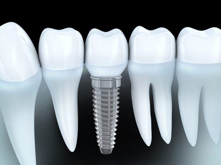 dental implant procedure in Saint Louis